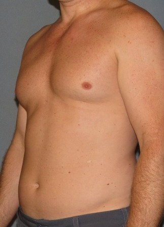 Liposelection High Definition (lipo HD) or abdominal etching